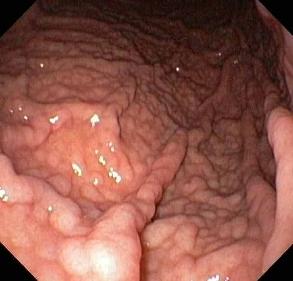 medicamentos gastritis cronica